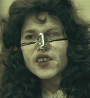 梅毒になると鼻が崩れるそうです。 チェックポイントは「歯」!